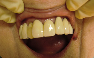 入れ歯を装着した状態